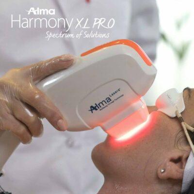 Usuwanie przebarwień skóry laserem Alma Harmony